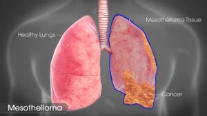 Mesathelioma Cancer